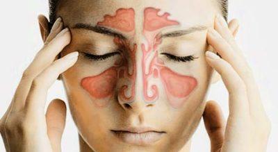 ¿Quieres saber que es la sinusitis?